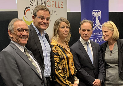 $150 million Federal Government donation to Stem Cells Australia